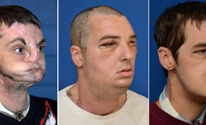 The Changing Face of Transplant Surgery