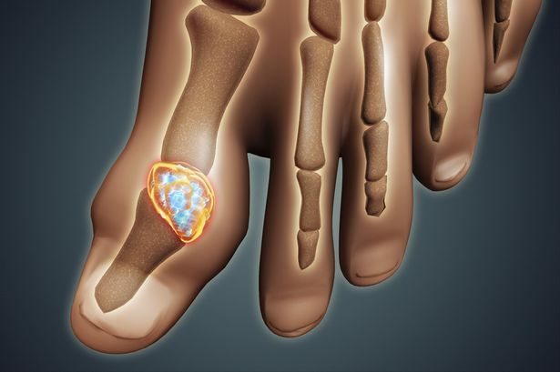 Why Is Gout On The Increase?