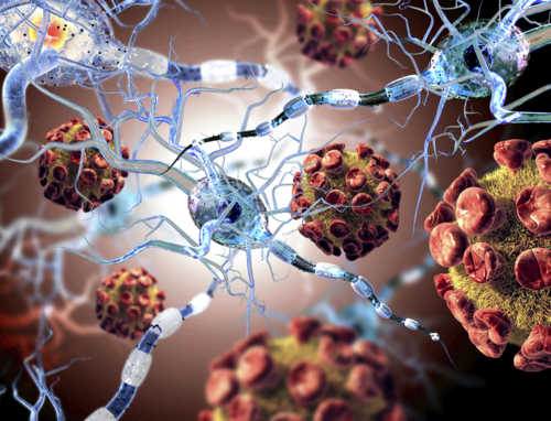 Multiple Sclerosis – Raising Awareness Through Education