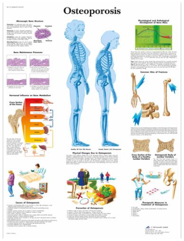 3B Scientific Osteoporosis Chart