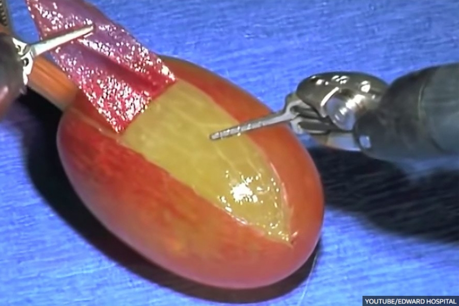 """I Did Surgery On A Grape"" – The Importance of Medical Simulation"